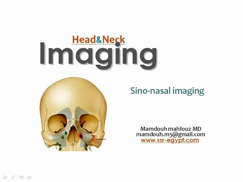 Imaging Paranasal sinuses - DRE 3 - Dr Mamdouh Mahfouz