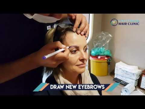 eyebrow transplant in Turkey/ universal hair clinic - YouTube