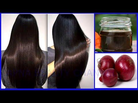 घर पर बनाये प्याज़ का तेल –  बालों का गिरना ,गंजेपन का अचूक उपचार || Diy Onion Hair Oil