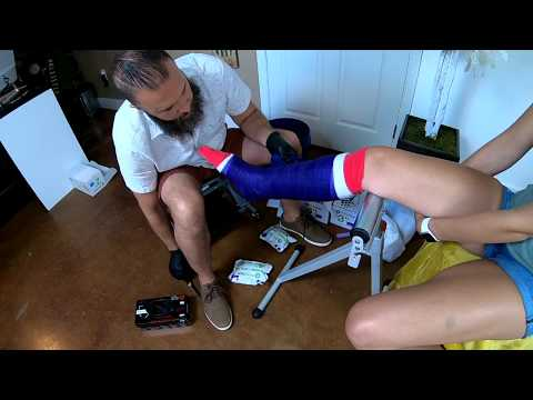 Applicatoin of a fiberglass short leg cast | OrthoTape.com
