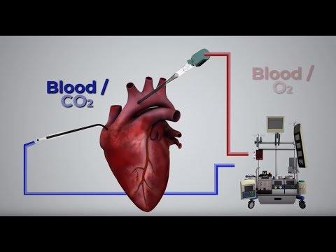 Cardiopulmonary Bypass: An Introduction