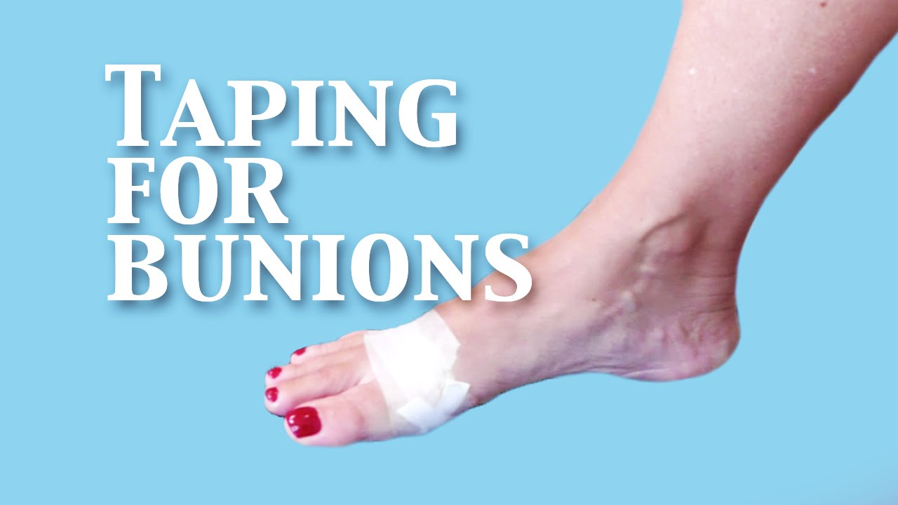 8 Effective Solutions For Bunion Pain 8 Effective Solutions For Bunion Pain new pictures