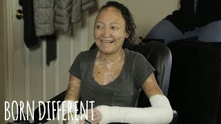 My Blistering Skin Causes Me Constant Pain | BORN DIFFERENT