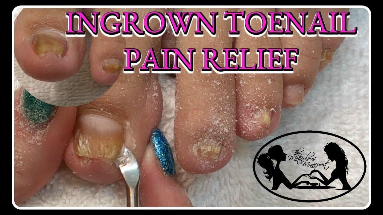 Satisfying Ingrown Toenail Pain Pedicure Tutorial Youtube