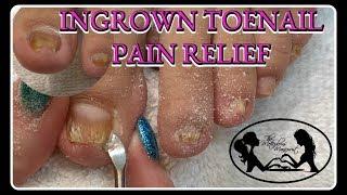 👣 Satisfying Ingrown Toenail Pain Pedicure Tutorial👣