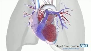 Komplikasi Bronkitis : Penyakit Cor Pulmonal.