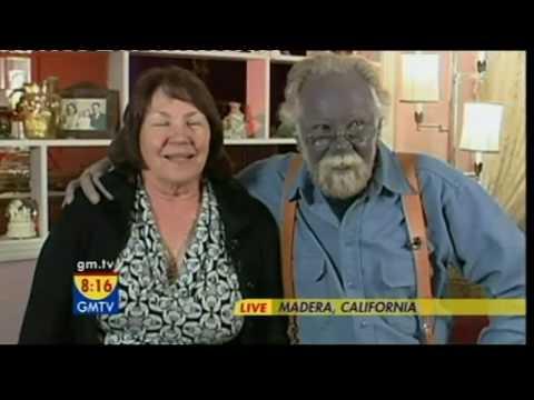 GMTV - Californian man's face turns blue (21.04.08)