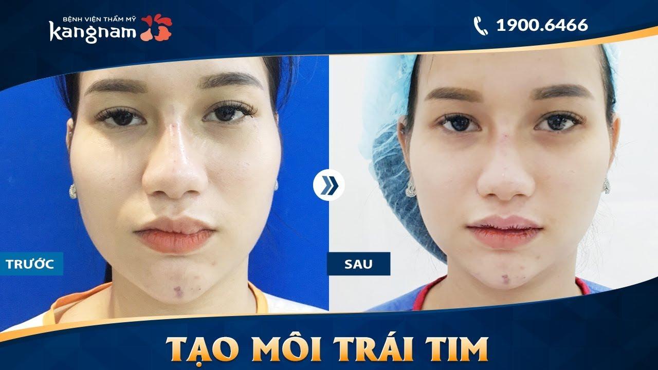 Xóa sẹo môi 10 năm + Thu mỏng môi dày + Tạo môi trái tim