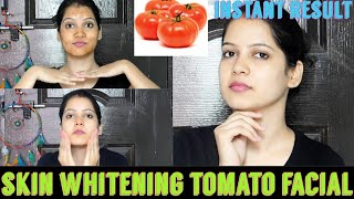 TOMATO FACIAL at home for clear glowing and spotless skin|Skin whitening facial|TipsToTop By Shalini