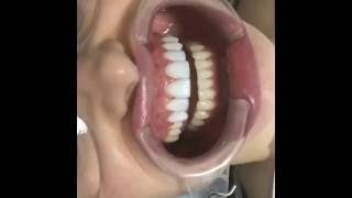 Установка Виниров(Обратите внимание, что зубы практически не обработаны., 2016-10-13T18:35:48.000Z)