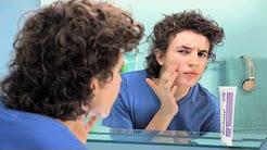 Com Benzac® a acne tem os dias contados | Anúncio de TV - Rapaz