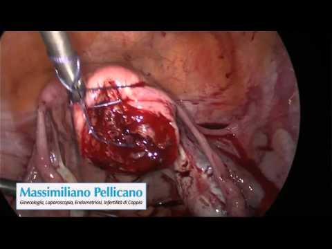 Dr Pellicano - Laparoscopy - Myomectomy