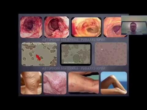 Как лечить интоксикацию организма