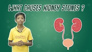 What Causes Kidney Stones? | Quick Science #19
