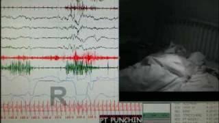 REM Behavior Disorder During Sleep Study