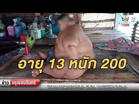 หนุ่มน้อยวัย 13 หนัก 200 กก. ซ้ำป่วยออทิสติก – ญาติวอนช่วย | ข่าวอรุณอมรินทร์ | 220464