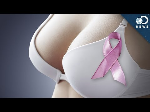 Do Bras Cause Cancer?