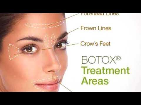Botox Q&A with Dr. Bruce Katz