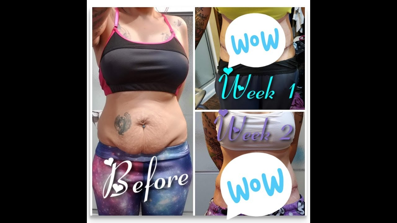 Tummy Tuck Journey 2 Week Post Op Dr Appt Incision Care And Body Pics Youtube Tummy Tucks Tummy Post Op