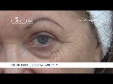 Rejuvenecimiento Facial con Láser CO2 y toxina botulínica (14005)