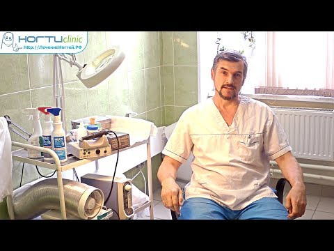 Обман пациентов врачами на примере лечения ногтей лазером