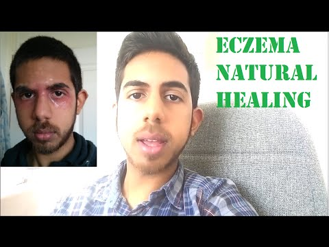 Eczema Detoxification Symptoms | EczemaHealing.org
