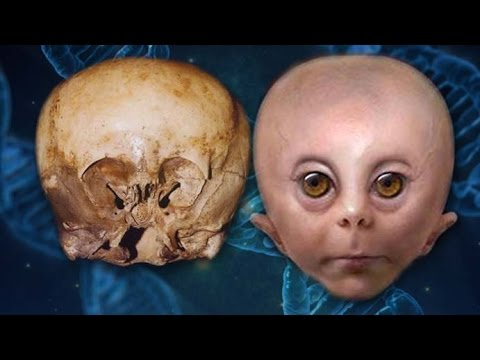 The Starchild Skull: Human Or...