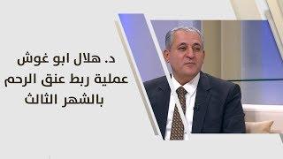 د. هلال ابو غوش - عملية ربط عنق الرحم بالشهر الثالث