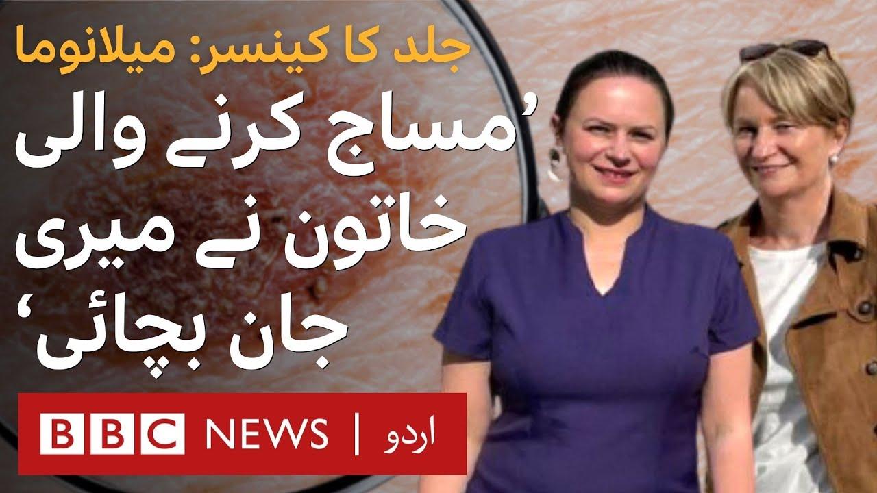 Melanoma: 'My masseuse saved my life from cancer' - BBC URDU