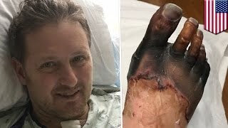 Rare diseases  Unusual strep throat case causes Michigan dad to lose hands and feet   TomoNews