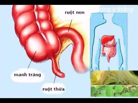 Các mẹo dân gian chữa bệnh viêm đường ruột hiệu quả