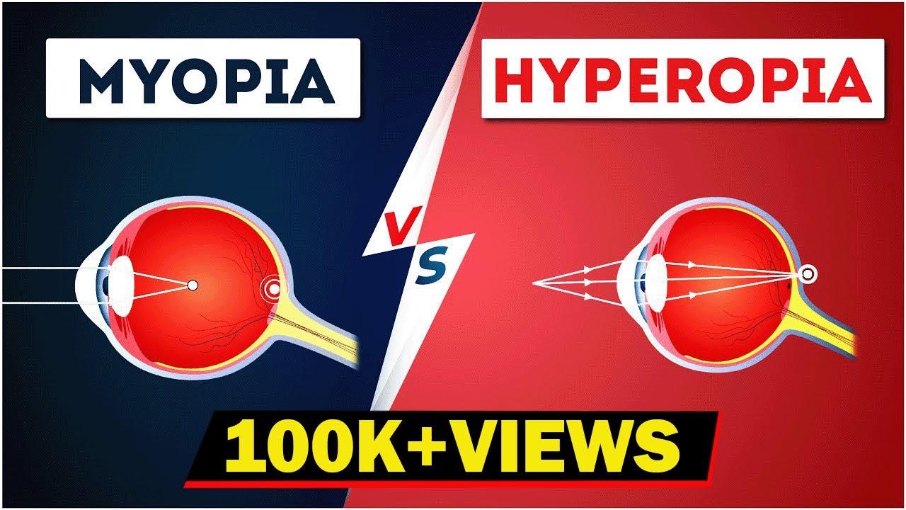 Myopia hyperopia, Tudnivalók az asztigmiáról I CooperVision - Mi a myopia és a hyperopia