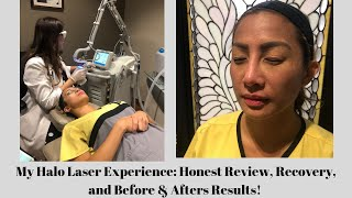 My live experience using the forever bbl and halo laser treatment - day 1 in medical spa room