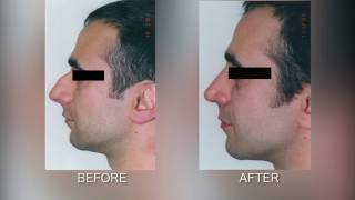 Fixing Large Bump with Rhinoplasty