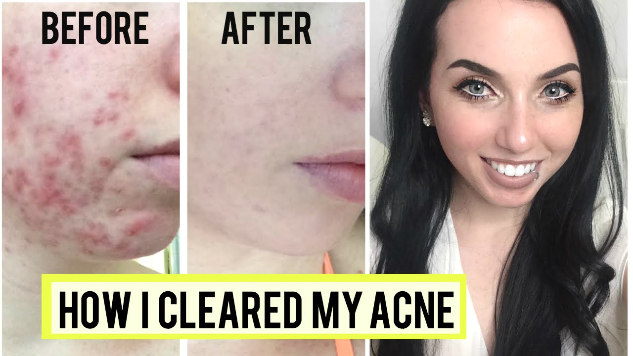 HOW I GOT RID OF CYSTIC ACNE! Skincare Favorites & Clear Skin Tips