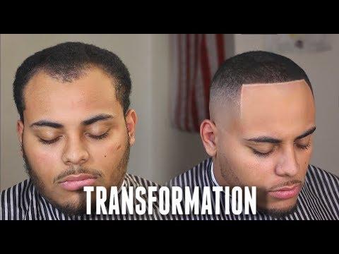 Haircut Transformation Receding Hairline Widows Peak Tips Hd