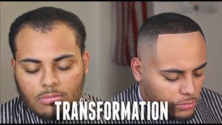 HAIRCUT TRANSFORMATION : Receding Hairline & Widows Peak Tips HD!