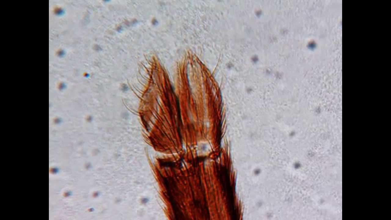 Mücke, w., Mundwerkzeuge - Mikroskop HD+ Video Deutsch - YouTube