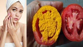 మొటిమలు తగ్గించే అద్భుత చిట్కా || Home Remedies For Pimples Remove On Face || Home Remedies || GSH