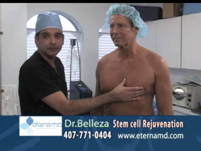 Male Fat Grafting to the Face at Dr. Mercado's offce