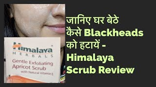 Himalaya Gentle Exfoliating Apricot Scrub Review in Hindi - How To Remove Blackheads At Home