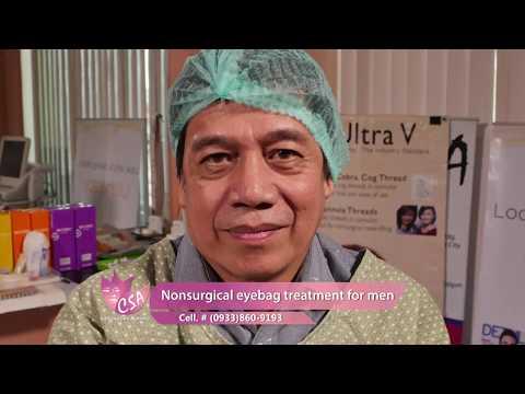 Nonsurgical eyebag treatment for men