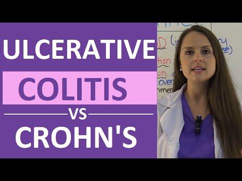 Crohn's Disease vs Ulcerative Colitis Nursing   Crohn's vs Colitis Chart Symptoms, Treatment