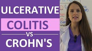 Ulcerative Colitis versus Crohn's Disease, Animation.