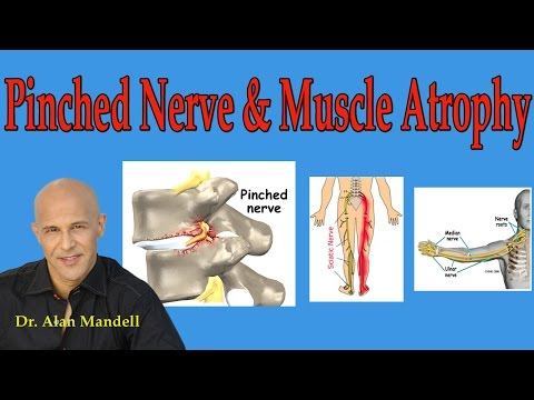 Pinched Nerve and Muscle Atrophy (What You Should Understand) - Dr Mandell