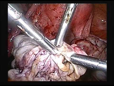Large 16 Cm Multi Loculated Left Ovarian Endometrioma
