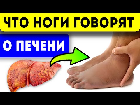 7 симптомов на ногах, которые расскажут о заболеваниях печени!