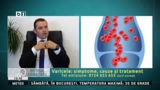 tratamentul varicozei în sumy