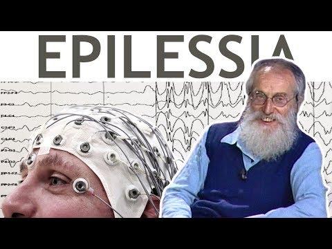 Dott. Mozzi: Epilessia