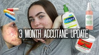 3 Month Accutane Update + My Skin Story || Isabel Moriarty